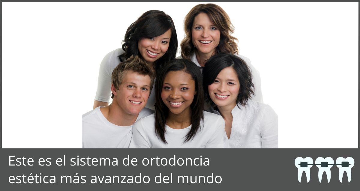 ¿Qué es un tratamiento de ortodoncia con el Sistema de Autoligado Avanzado de Brackets Damon Clear?