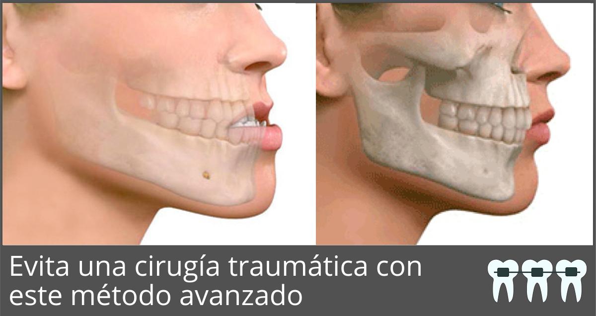 ¿Necesitas Cirugía Ortognática y no deseas hacértela?